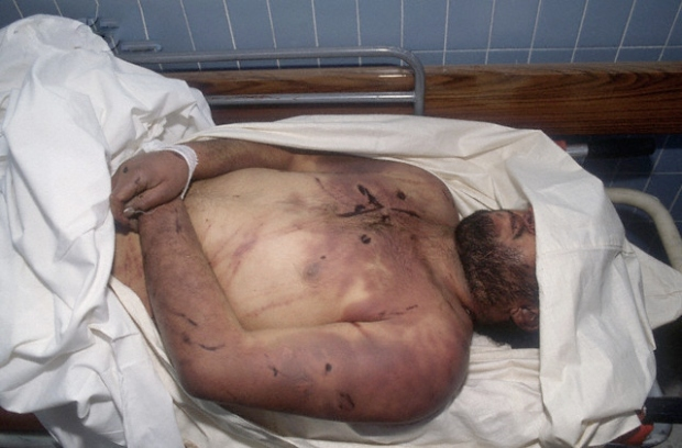 Kuwaiti Victims of  Torture