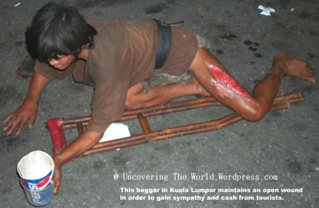open-wound-beggar